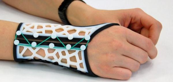 Használható dolgot is lehet készíteni 3D nyomtatóval: csuklósín